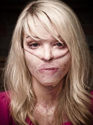Model Katie Piper S Struggle After Rape And Acid Attack Belfasttelegraph Co Uk