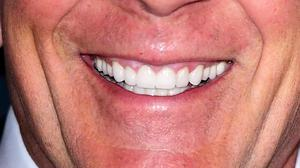 Dentists Issue Warning Over High Street Teeth Whitening Products